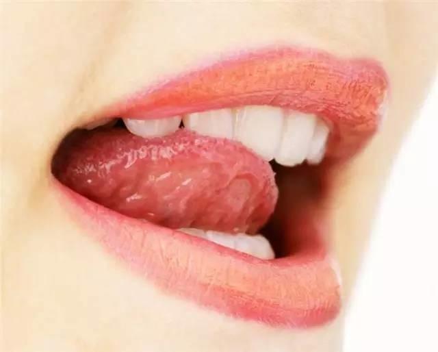 """口干嘴破全身痛:原来缺乏这些""""营养素"""" - 一统江山 - 一统江山的博客"""