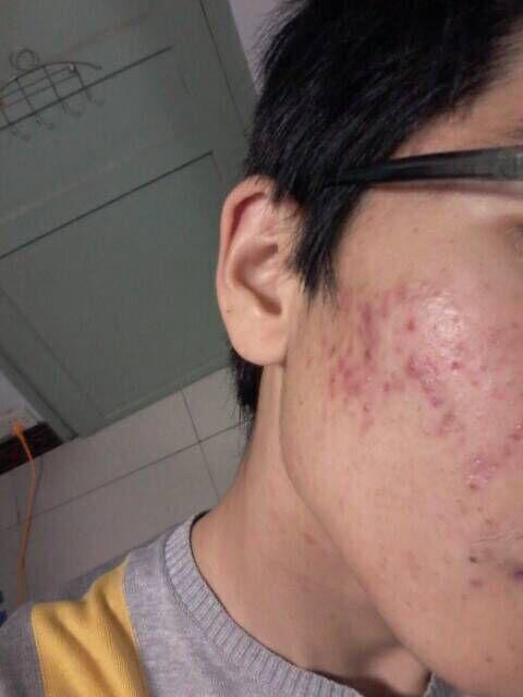 脸上 长很多痘痘.这怎么办?是螨虫引起的吗?