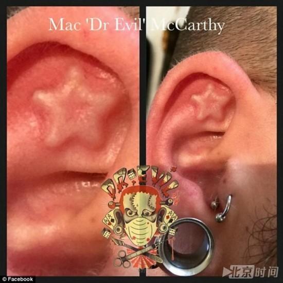 """英纹身师涉嫌割顾客耳朵舌头被称""""恶魔医生"""""""