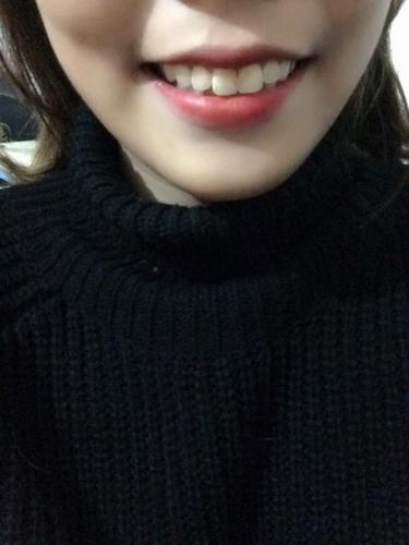 身为牙齿门牙太大一直都不敢露初中笑,今年21女生v牙齿礼河图片