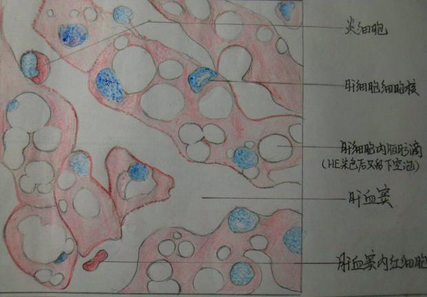 肝细胞脂肪变性的绘图?