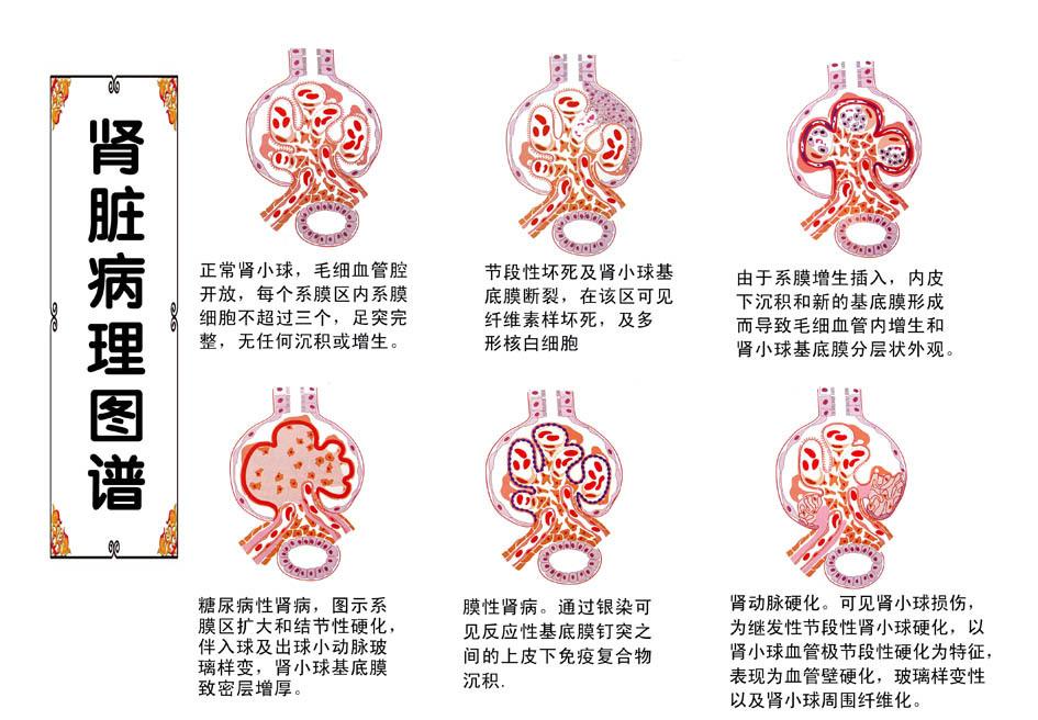 肾组织水肿手绘图