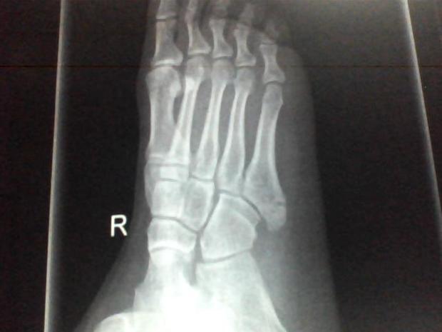 右脚第五跖骨基底部轻微骨折怎么办