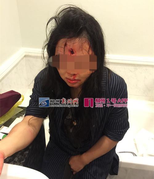 【转】北京时间     3名中国人南非旅游遭劫匪枪击 一对母女头部中枪 - 妙康居士 - 妙康居士~晴樵雪读的博客
